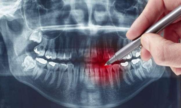 Μάχη κατά της τερηδόνας δίνουν Βρετανοί οδοντίατροι